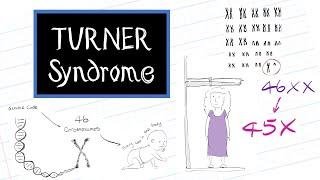 Mengenal Sindrom Turner Melalui Video Animasi Ini