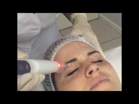Plasma Eye Rejuvenation