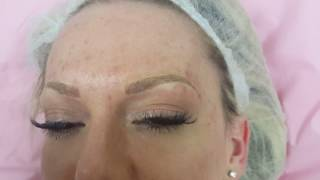 Microblading for Eyebrow Hairloss
