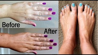 In this video I am sharing a very easy, 100% effective remedy to get fair hands and feet. This remedy will remove tan and dullness from your hands and feet and will make them fair, soft and bright. You can use this remedy to remove the tan from your face also. सिर्फ दूध और नमक हटाये हाथों पैरों का कालापनTo make this skin whitening and tan removal remedy, you need only 2 ingredients. One is Milk and other is Rock salt. ix the ingredients properly and scrub our hands and feet with the mixture. If your hands and feet are very dry or sensitive, you can add a spoon of honey in the mixture. Use this hand and feet whitening remedy 2-3 times a week to get the best results.Hand and feet whitening, get fair hands, hand and feet whitening, hatho aur pairo ka kalapan door kare, hands ko gora banana ka nuskha, how to remove tan from from hands and feet, salt and milk for skin whitening, how to get fair skin, home remedy for skin tanning, how to remove tan, get fair and soft hands, Pooja Luthra New Video, Beauty tips, Hand and feet care, Hand and feet scrub, GET SOFT FAIR WRINKLE FREE HANDS IN 15 MINUTES-https://youtu.be/3o70CiPHQ2oHow to get rid of Dark Underarms,dark Knees & Dark Elbows-https://youtu.be/Wv4yHZY3PZYहाथों को गोरा और मुलायम बनाने के घरेलू उपाय और नुस्खे-https://youtu.be/Pqo0bRUdDDgHow To Remove Sun Tan From Face, Hands & Legs Instantlyhttps://youtu.be/REIKihPf9SM