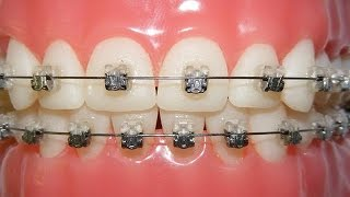 Getting Braces - Do They Hurt?