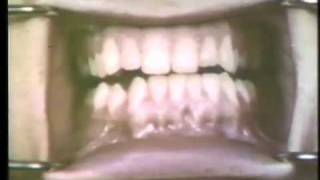 Open Bite Surgical Procedures - Ostectomy For Prognathism