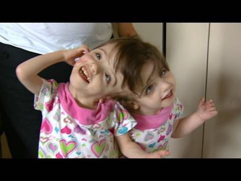 medical - Twin girls joined at the head who share the same brain and so much more. Watch a follow up story - 8 years later - on a similar set of twins: http://ABCNews....