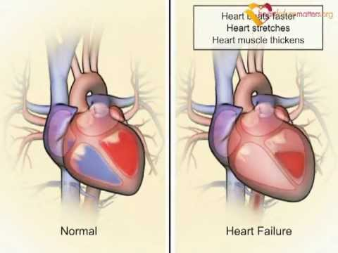 How the heart and body compensate in heart failure – www.heartfailurematters.org