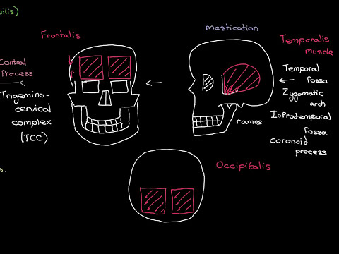 Headaches Part 3