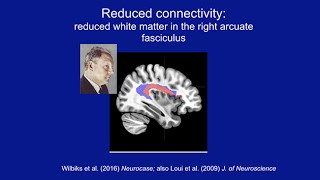 """(Visit: http://www.uctv.tv/) 1:34 - Main TalkIsabelle Peretz examines what congenital amusia - the condition where one is amusical, lacking such abilities as pitch or rhythm recognition - can tell us about the neurobiological origins of musical ability in humans. Recorded on 05/05/2017. Series: """"CARTA - Center for Academic Research and Training in Anthropogeny"""" [Show ID: 32445]"""