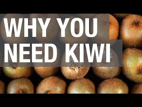i kiwi sono essenziali per la vita: ecco perchè!