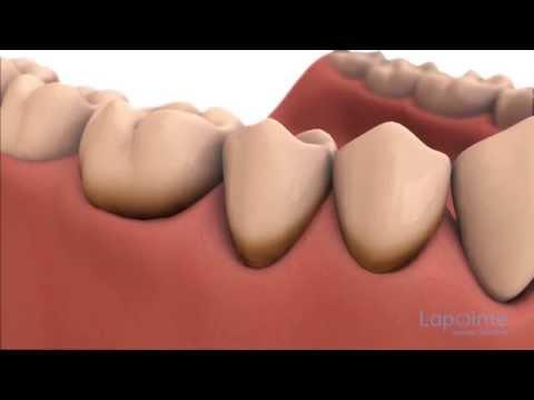 comment soulager parodontite