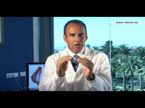 Dr. Vicente Paloma. Cirugía mamaria