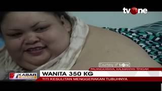 Video Wanita Obesitas 350 KG, Titi Wati, Berharap Bobotnya Kembali Normal MP3, 3GP, MP4, WEBM, AVI, FLV Januari 2019