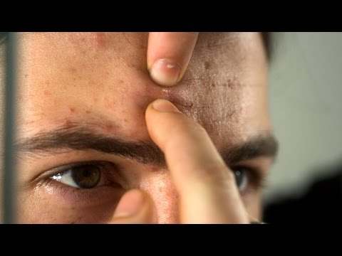 Kviseekplosjon i sakte film! // Pimple explodes in slow motion