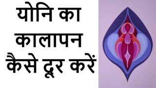 योनि का कालापन कैसे दूर करें - Yoni Ka Kalapan Kaise Dur Kare