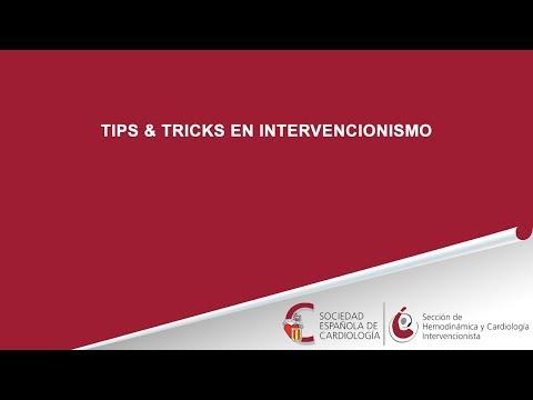 Intervencionismo en insuficiencia cardiaca