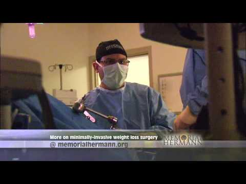 The Gastric Sleeve Procedure - Memorial Hermann Hospital The Woodlands