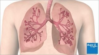 How an asthma attack occurs