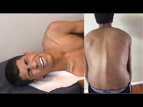 Dr Ian - Chiropractic CHANGES LIFE For Teenager With Acute PAIN & DEAD LEG