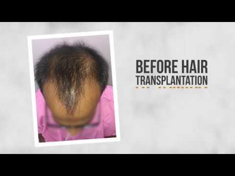 Hair Transplant at Tamira (Promo)_A plasztikai sebészet kulisszatitkai. A legmodernebb eljárások, és orvosi hibák. Szilikon völgy