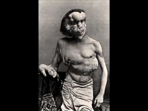 'Reviving the Elephant Man' (Forensic Reconstruction)