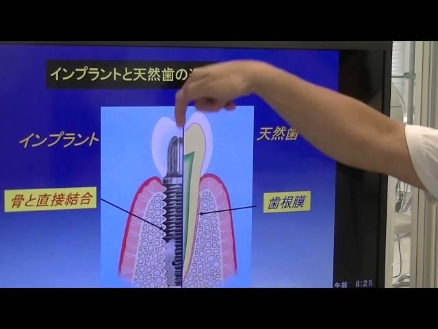 インプラントのデメリット 天然歯との違い 神戸・芦屋の歯医者 デンタルクリニックツジ