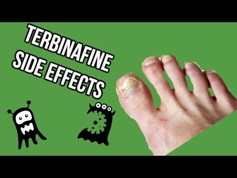 Terbinafine Side Effects