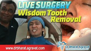 How the wisdom tooth removal extraction