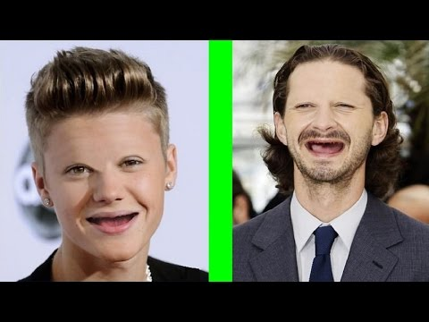 Celebrities Without Teeth And Eyebrows