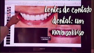 Lentes de contato dental: um novo sorriso