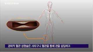 말초혈관 중재 시술  미리보기