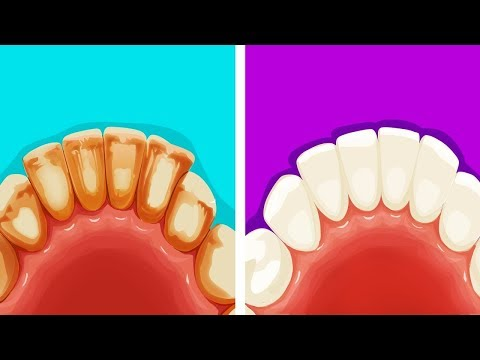 8 Эффективных и Натуральных Способов Избавиться от Зубного Налета - DomaVideo.Ru