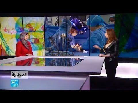 العرب اليوم - شاهد: طرق الوقاية من الإصابة بدوالي الساقين