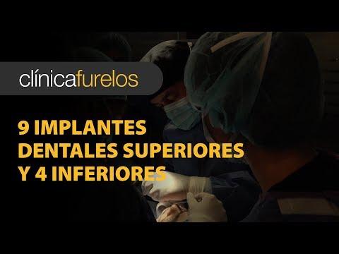 cirugía dental - http://furelos.com/implantes-dentales/casos-complejos-en-implantologia-dental/