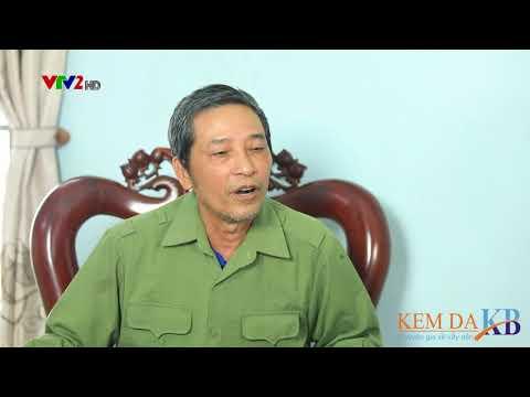 VTV2 - Sống Khỏe mỗi ngày - BN vẩy nến Vũ Văn Thông