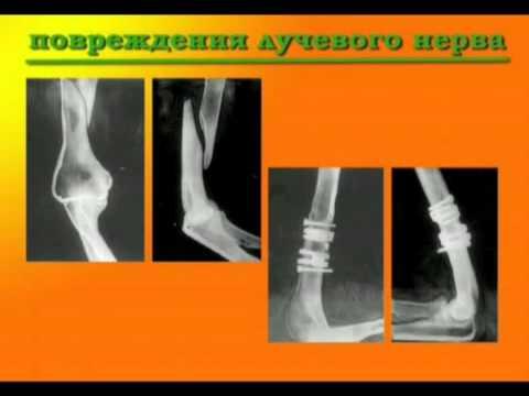 Переломы плечевой кости   Fractures of the humerus