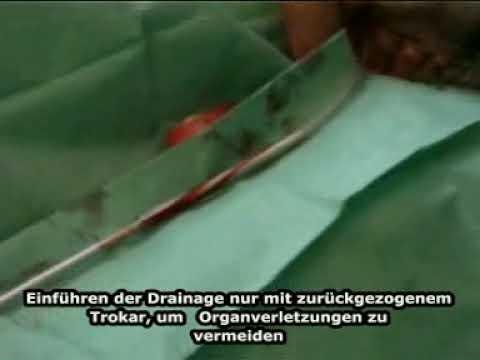 Дренирование плевральной полости по Бюлау