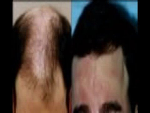 Amazing Rogaine Before and After Pics. restore-thinning-hair.info Here's the