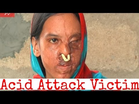 Video Pakistan: Story of an acid attack victim. download in MP3, 3GP, MP4, WEBM, AVI, FLV January 2017