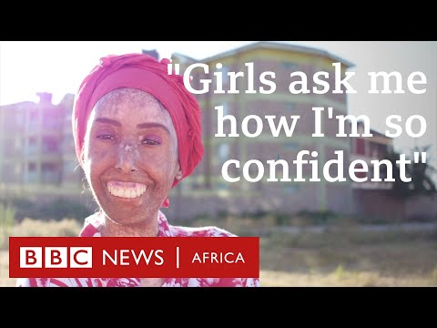 BBC News - Eskiden aynaya bakmaya korkardım. Farah KHALECK Skleroderma Eylemcisi (aktivist) - 2019.03.19