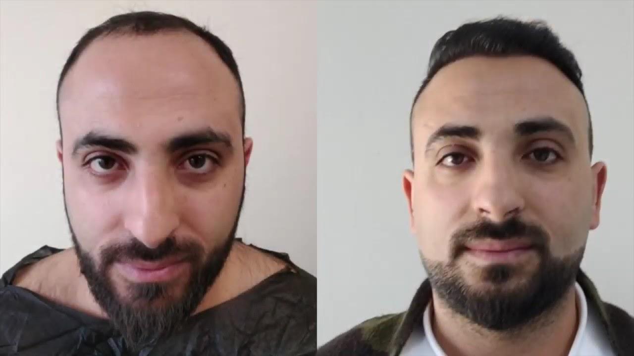 Comfort Fue Yöntemiyle Saç Ekimi - Opr. Dr. Cenk Melikoğlu - İzmir Ekol Hastanesi