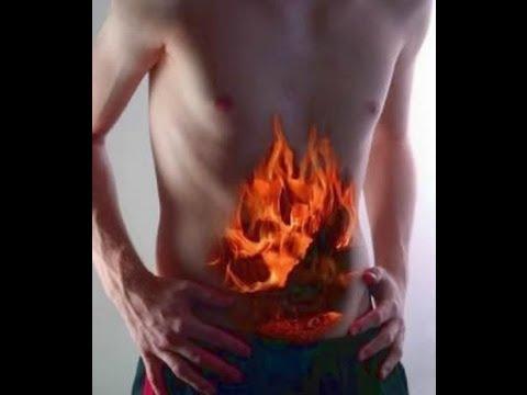 острая кишечная непроходимость диагностика.