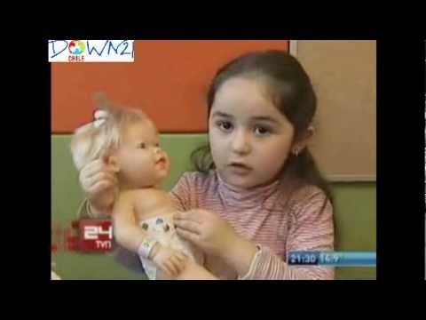 Ver vídeoSíndrome de Down: Baby Down