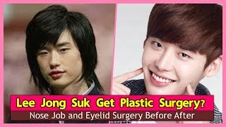 Video Lee Jong Suk Get Plastic Surgery? Nose Job and Eyelid Surgery Before After MP3, 3GP, MP4, WEBM, AVI, FLV Agustus 2018