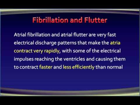 4 atrial fibrillation ECG of AF