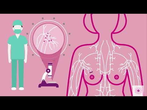 What causes breast cancer? | Zahra Association