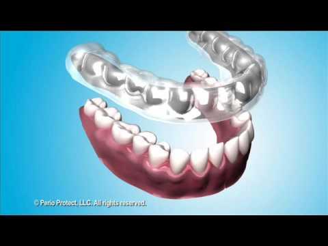 Gum Disease Periodontal Disease Treatment Atlanta Dental Spa