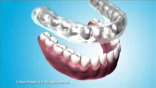 Treating Periodontal Disease with the Perio Protect Method