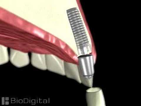 3D Medical Animation of a Dental Implant