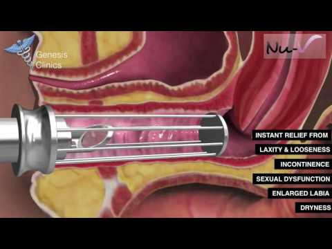 Nu-V Non Surgical Vaginaplasty and Labiaplasty