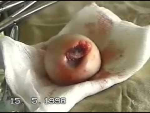 Операция на бедренной кости без комментариев