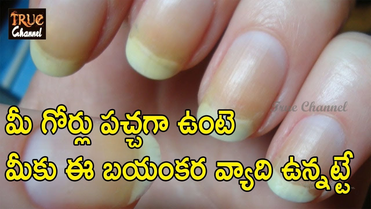 మీ గోర్లు పచ్చగా ఉంటె మీకు ఈ బయంకర వ్యాది ఉన్నట్టే | yellow nail syndrome and its remedies