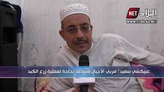 الجلفة : عبيكشي محمد بحاجة للعملية زراعة الكبد في تركيا